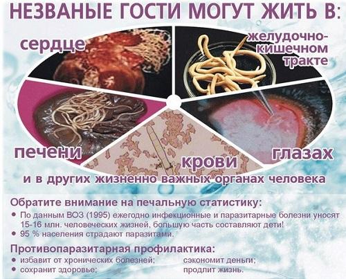 очищение кишечника от паразитов чесноком