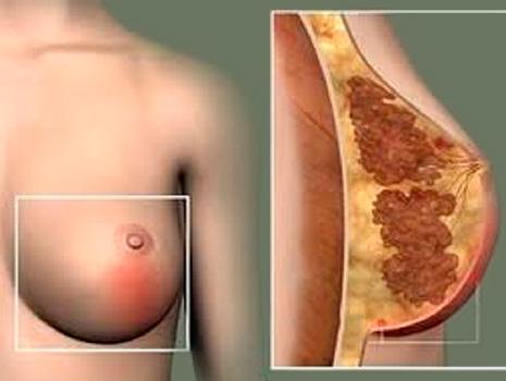 Абсцессы молочной железы наиболее распространенные у кормящих женщин