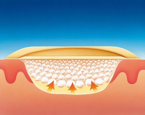 Кальциноз атеросклеротических бляшек сосудов