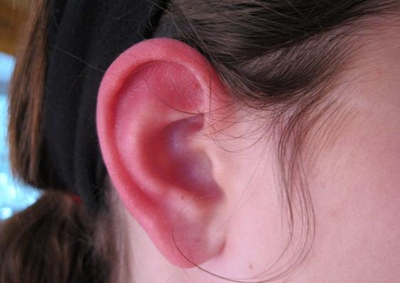 Что делать при обморожение ушей