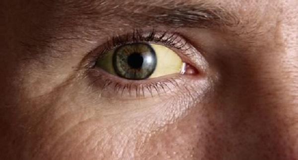 Желтушность белков глаз указывает на проблемы с печенью