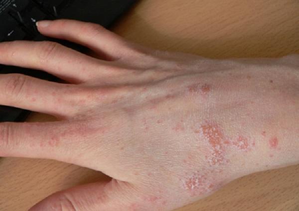 Сильный зуд возникает при заболеваниях кожи