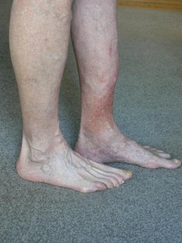 Восстановление сосудов ног при диабете