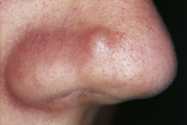 фото бугорки при сифилисе
