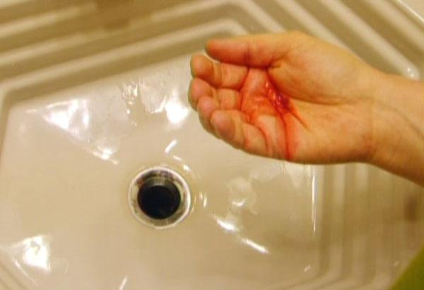 Иногда кровохарканье является начальным признаком туберкулеза
