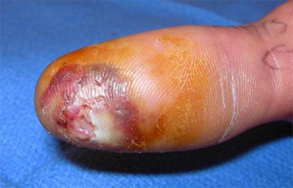 Oстрый гнойно-воспалительный процесс кистей