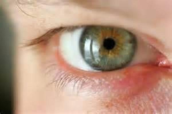 Народные капли для глаз для улучшения зрения