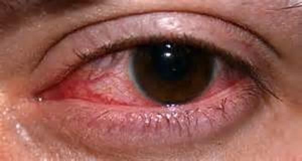 Симптом красных глаз могут сопровождать разные состояния