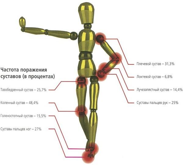 Частота поражения суставов (в процентах)