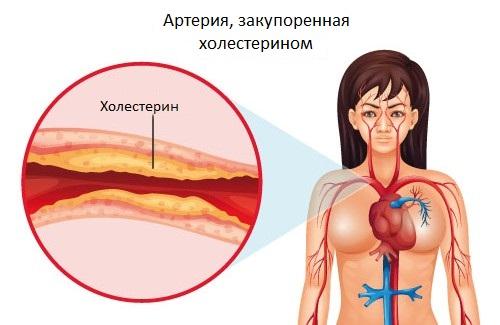 Артерия, закупоренная холестерином