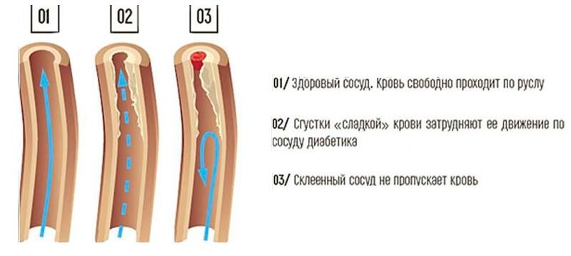 Вид здорового сосуда, сосуда диабетика, склеенного сосуда