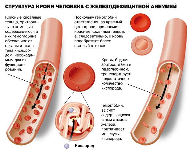 Структура крови человека с железодефицитной анемией