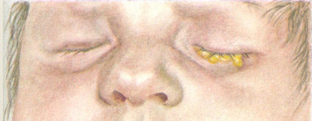 Бленнорея - гонорея новорожденных