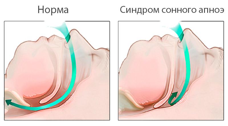 Синдром ночного апноэ/ гипопноэ