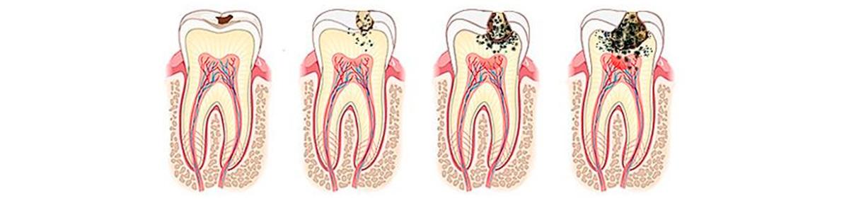 Болезненное разрушение зубов