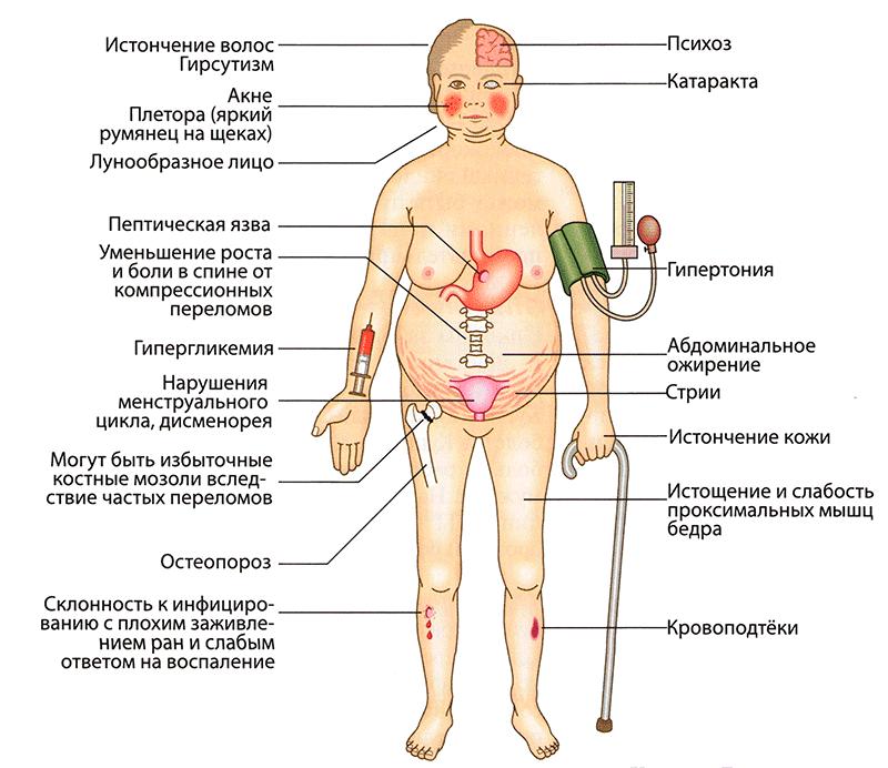 Побочные эффекты лечения глюкокортикоидами