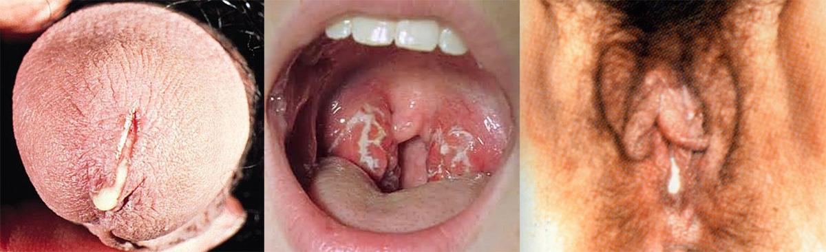 Симптомы заражения трипером
