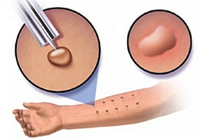 скарификационные пробы на аллергию в спб