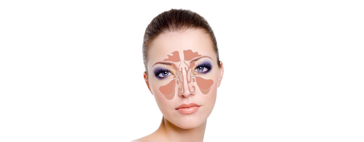 Воспаление носовых пазух