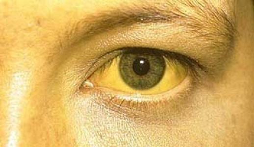 Симптомы синдрома Жильбера