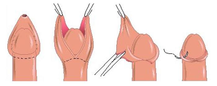 Схема обрезания
