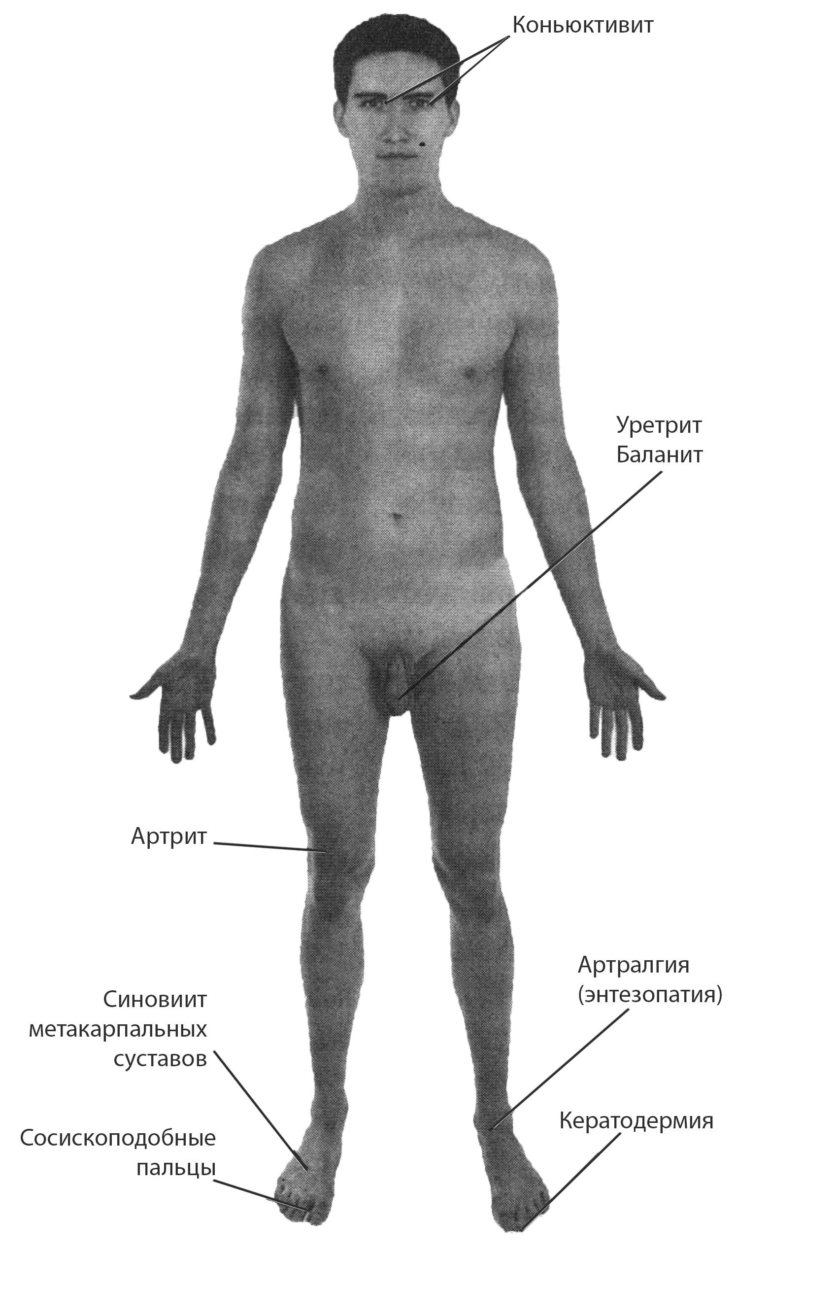Артриты реактивные