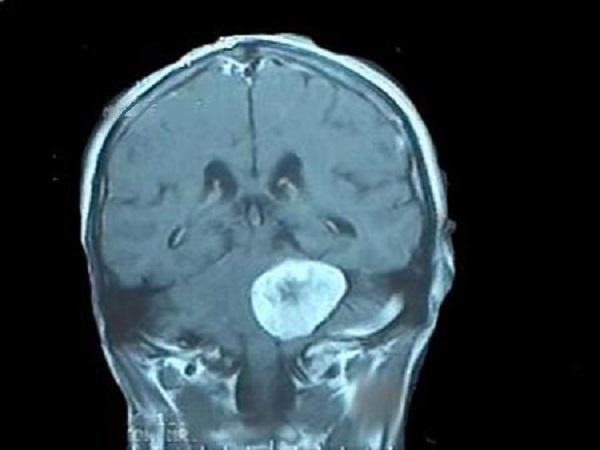 В начале развития опухоли возникает шум в ухе с постепенным снижением слуха на это ухо до полной глухоты