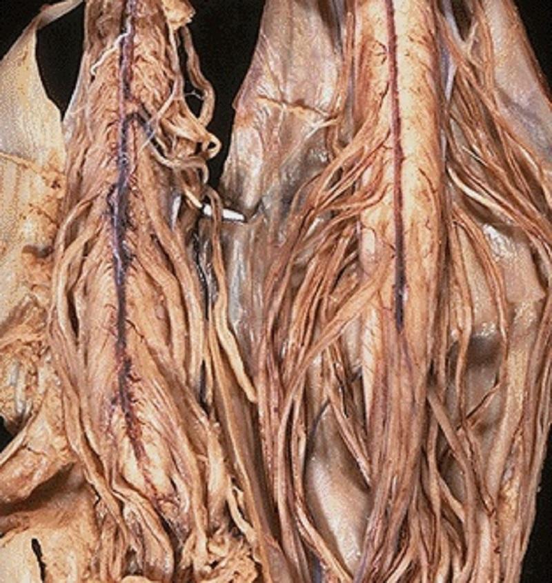 медикаментозные средства от паразитов в организме человека