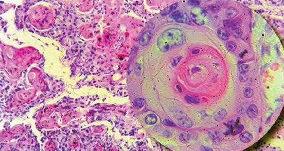 Вирус папилломы человека может быть связан с развитием болезни