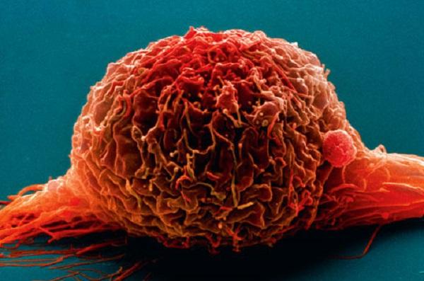 Рак мочевого пузыря