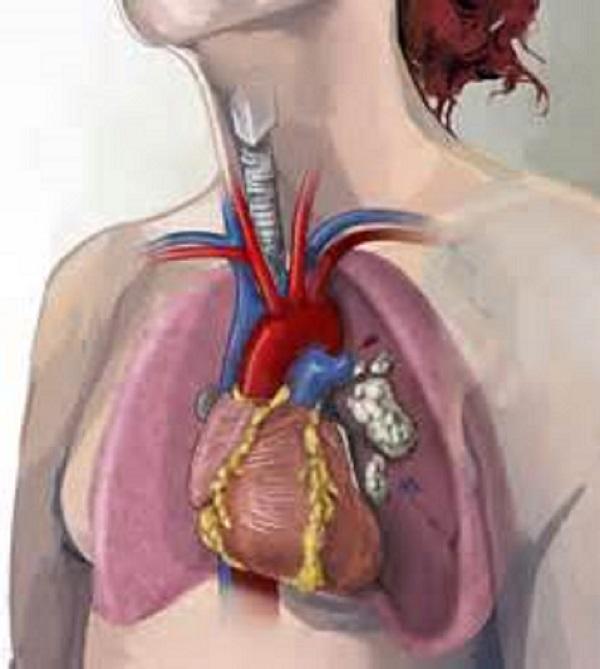 Бронхиальная карцинома