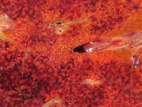 Облитерирующий эндофлебит печеночных вен