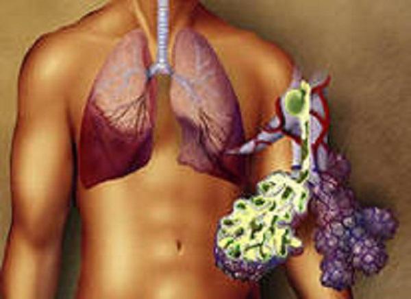 хламидия пневмония у взрослых симптомы лечение