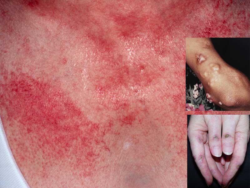 Симптомы дерматомиозит