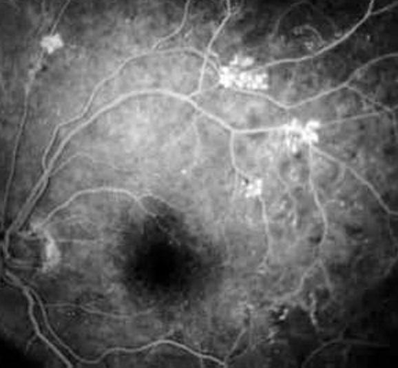 Больные с диабетической ретинопатией часто не имеют никаких офтальмологических жалоб
