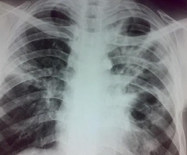 Фиброзно-кавернозный туберкулез легких