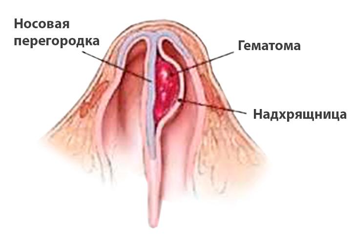 Гематома и абсцесс носовой перегородки