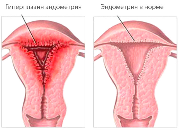 Увеличение груди теосиаль киев