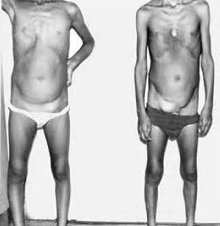 Синдром Марфана - Причины, симптомы и лечение. Журнал 57