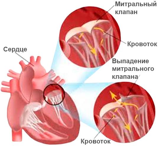 МН является следствием неправильной работы митрального клапана сердца