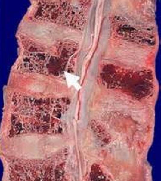 Cимптомoм миеломной болезни является плазмоцитоз костного мозга