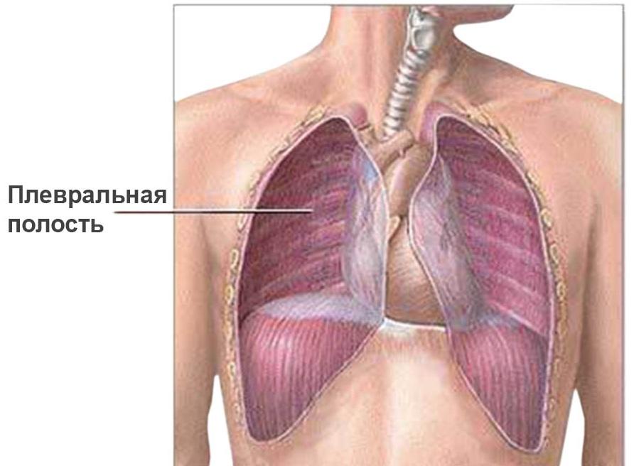 Симптом экссудативного плеврита