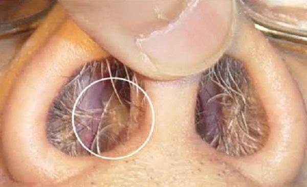 Образование воспалительного изменения слизистой оболочки носа