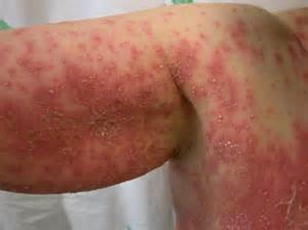 Заболевание начинается с гриппоподобного синдрома
