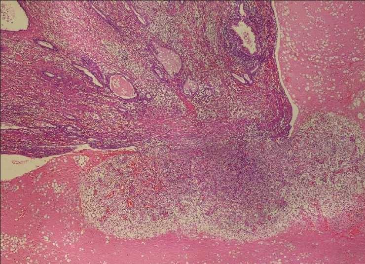 Сальпингит  главная причина непроходимости маточных труб