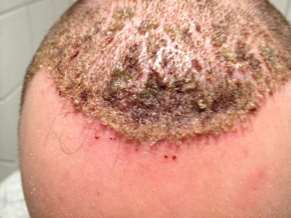 Профилактика грибка кожи после излечения