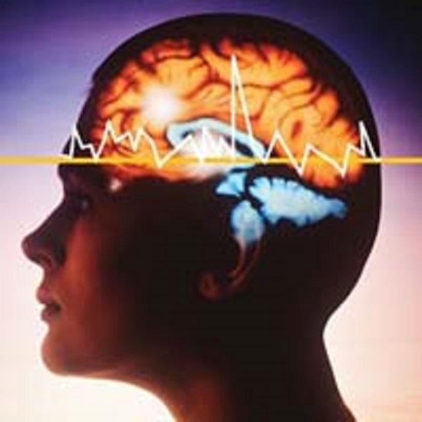 Статус Эпилептический фото