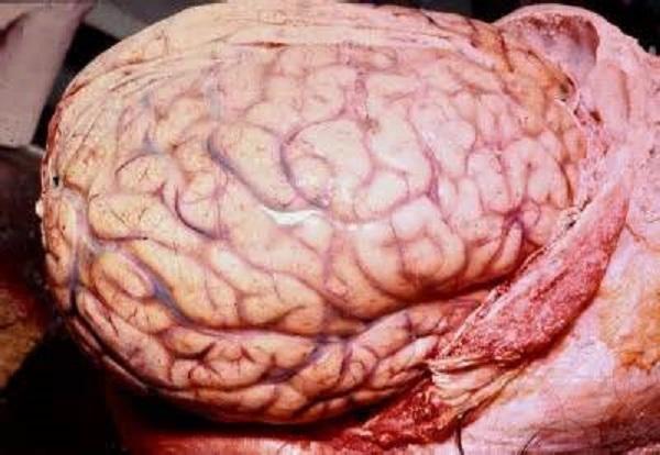Начальный этап отека-набухания головного мозга