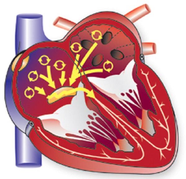 Фибрилляция желудочков сердца