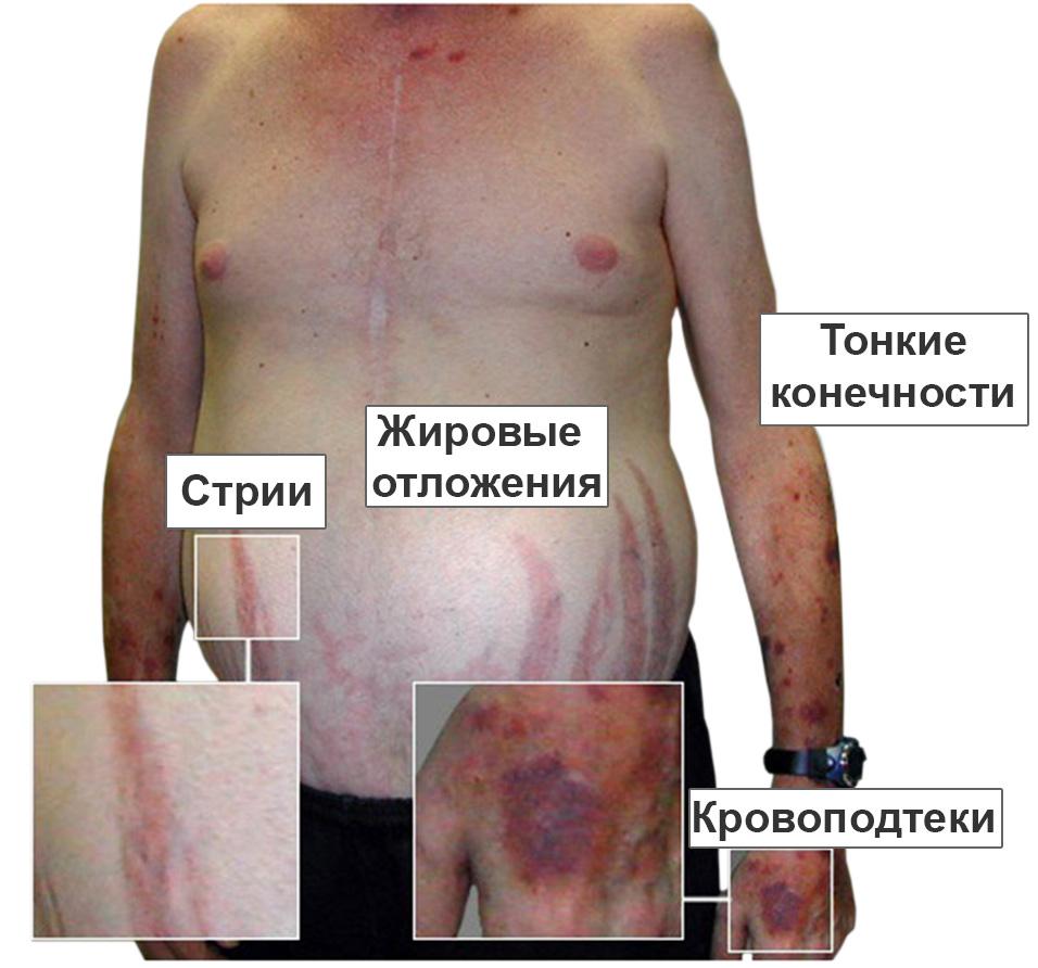 Диэнцефальный синдром фото